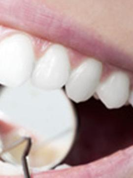 frais dentaires et complémentaire santé